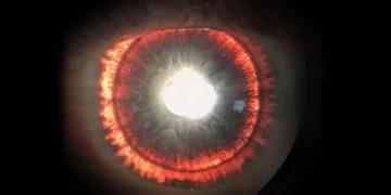 Examen ocular revela que iris de los ojos de un hombre brillan intensamente