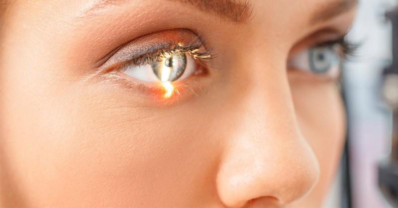 Examen ocular