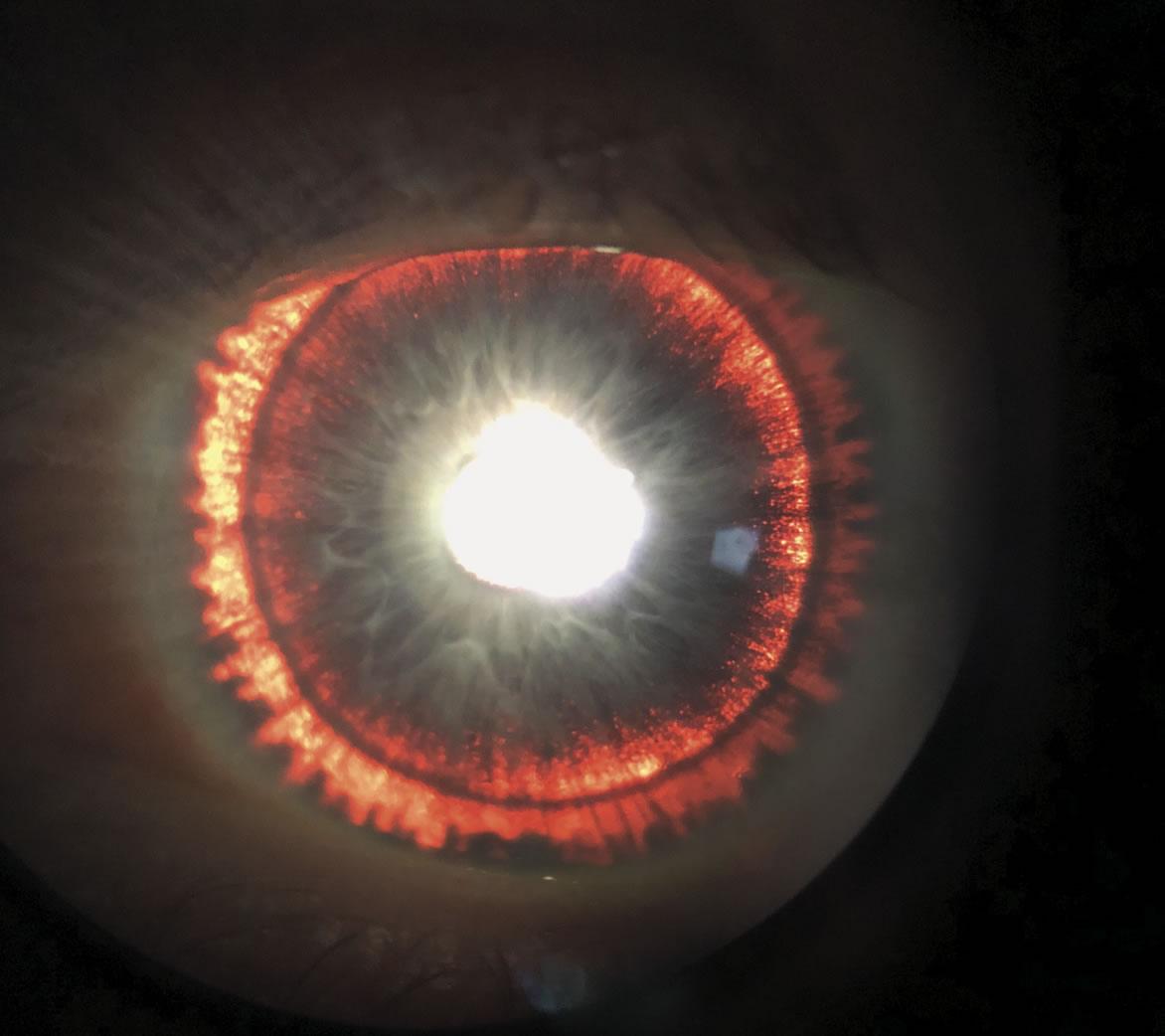 Un examen de vista reveló que un hombre posee unos iris muy brillantes