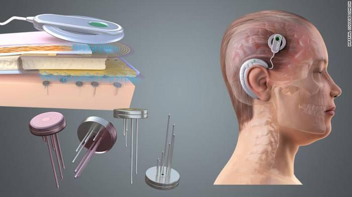 Elon Musk anuncia que su empresa Neuralink comenzará a fabricar implantes para cerebros humanos «en menos de un año»