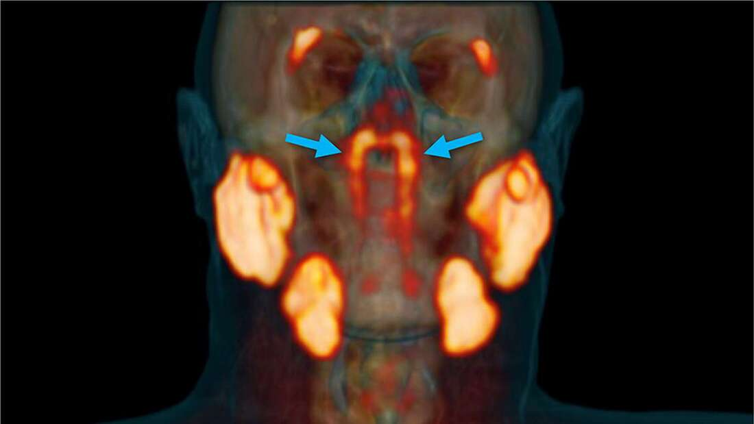Descubren accidentalmente un nuevo órgano dentro de la cabeza humana