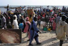 Enfermedad desconocida afecta a más de 500 personas en Senegal y obliga a aplicar cuarentena