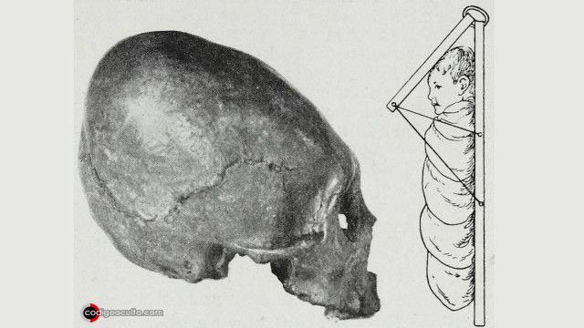 Cráneos alargados en civilizaciones antiguas