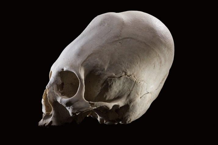 Cráneo alargado