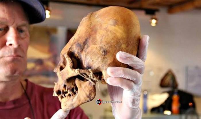 Cráneo alargado de Perú