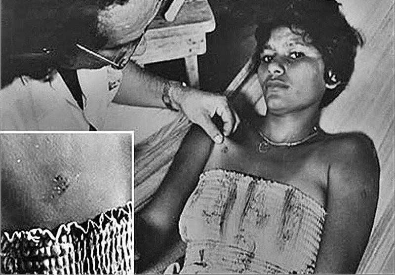 Una imagen clásica: Una habitante de Isla Colares, Aurora Fernandes, es atendida por médicos, y muestra las heridas recibidas durante el ataque sufrido
