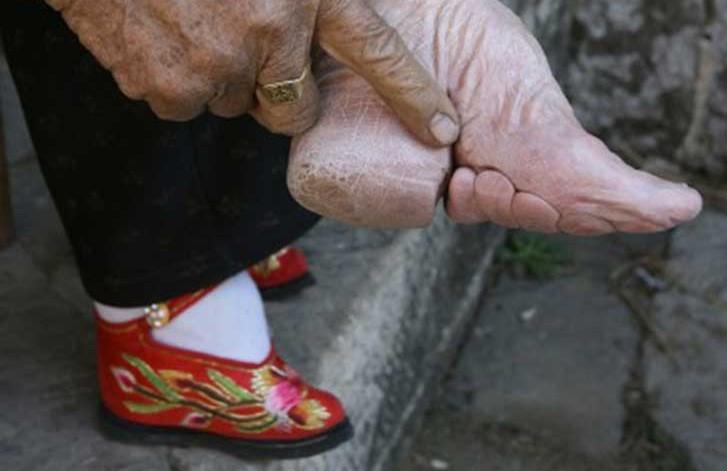 Un ejemplo de pies modificados en China