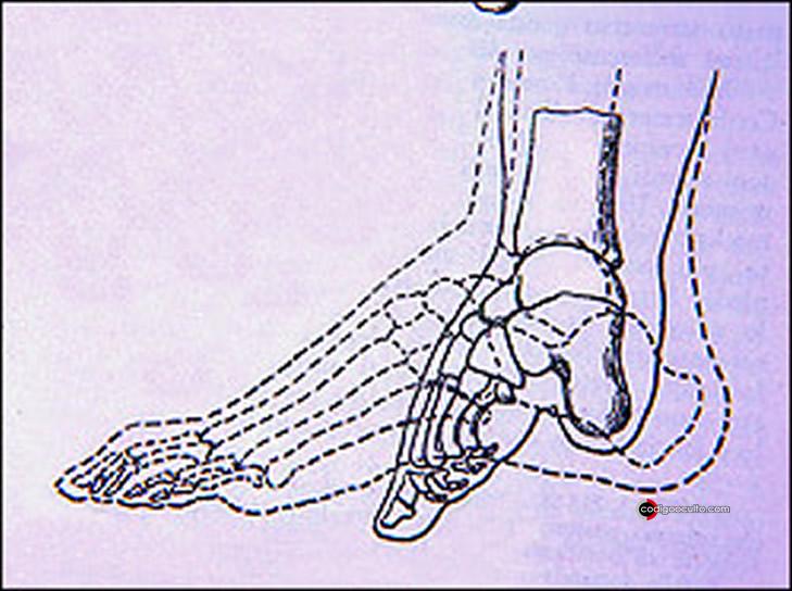 De esta forma el pie era modificado en el antiguo proceso