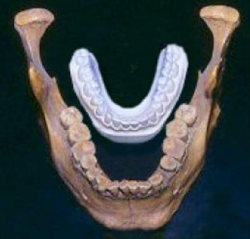 Representación y comparación entre la mandíbula de un Homo sapiens y la de un gigante de Lovelock